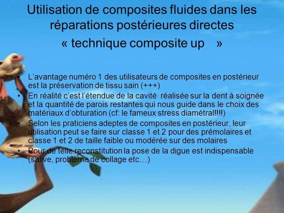 Utilisation de composites fluides dans les réparations postérieures directes « technique composite up » Lavantage numéro 1 des utilisateurs de composi