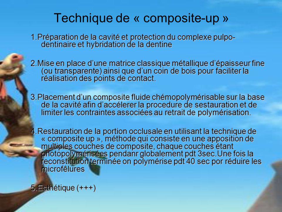 Technique de « composite-up » 1.Préparation de la cavité et protection du complexe pulpo- dentinaire et hybridation de la dentine 2.Mise en place dune