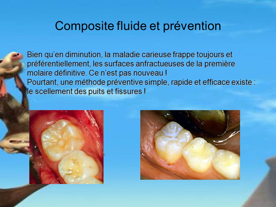 Composite fluide et prévention Bien quen diminution, la maladie carieuse frappe toujours et préférentiellement, les surfaces anfractueuses de la premi