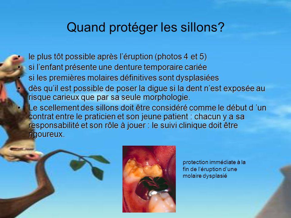 Quand protéger les sillons? le plus tôt possible après léruption (photos 4 et 5)le plus tôt possible après léruption (photos 4 et 5) si lenfant présen