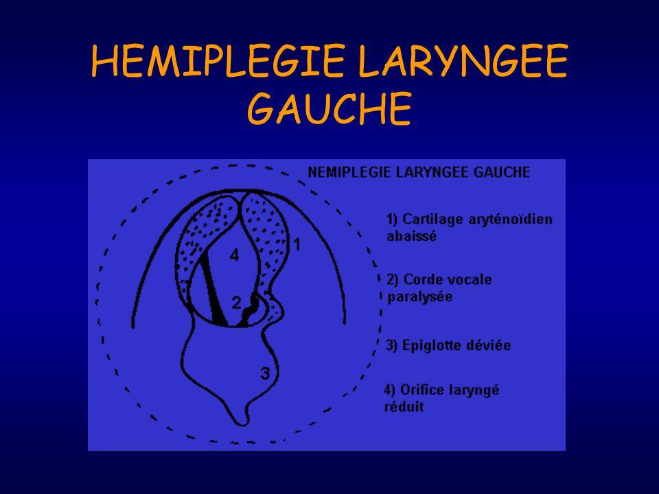 HEMIPLEGIE LARYNGEE GAUCHE