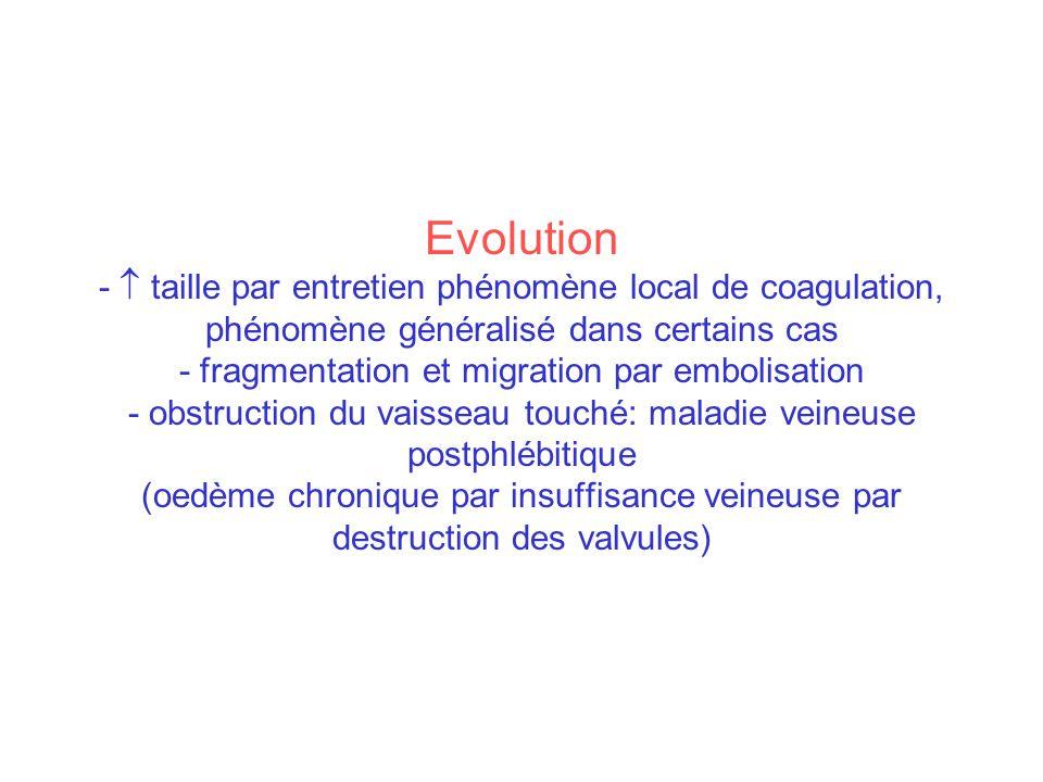 Evolution - taille par entretien phénomène local de coagulation, phénomène généralisé dans certains cas - fragmentation et migration par embolisation