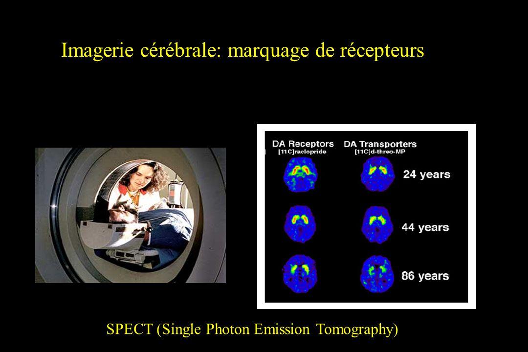 Imagerie cérébrale: marquage de récepteurs SPECT (Single Photon Emission Tomography)
