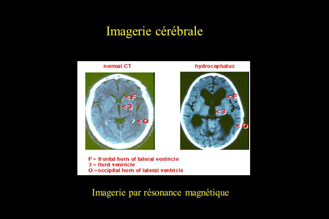 Imagerie cérébrale Imagerie par résonance magnétique
