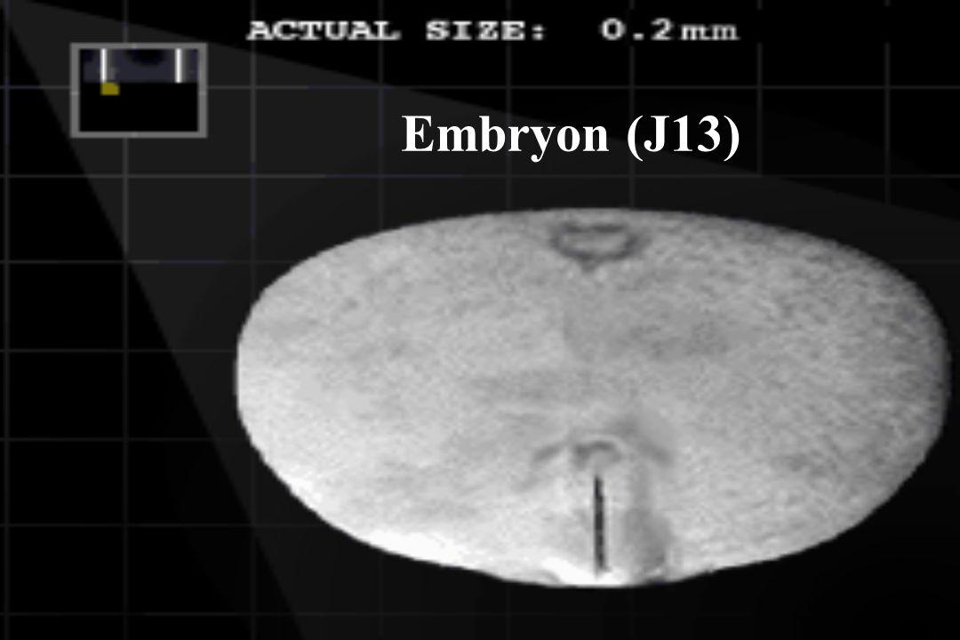 Embryon (J13)