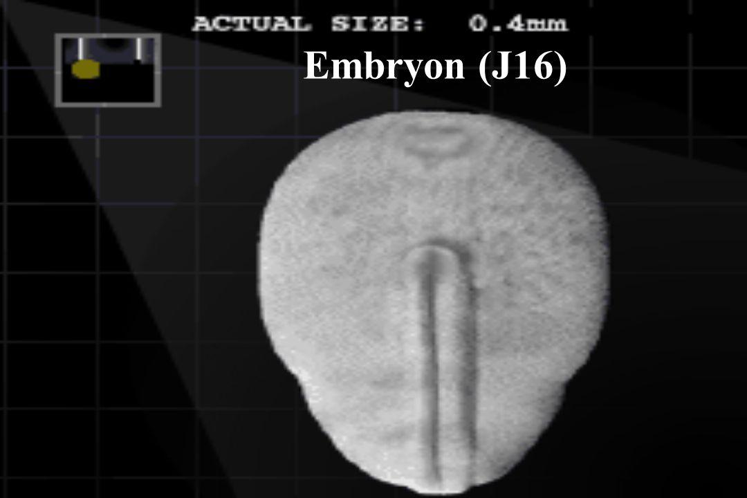 Environ 3000 boutons par neurone !
