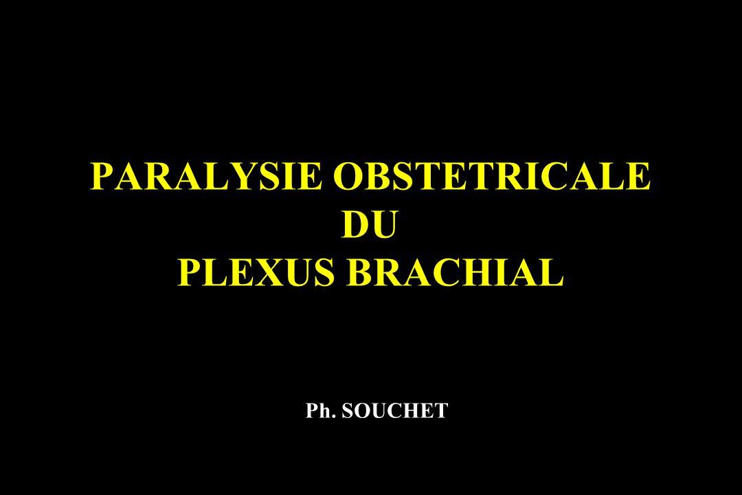 PARALYSIE OBSTETRICALE DU PLEXUS BRACHIAL Ph. SOUCHET