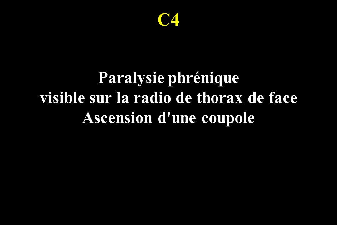 C4 Paralysie phrénique visible sur la radio de thorax de face Ascension d'une coupole