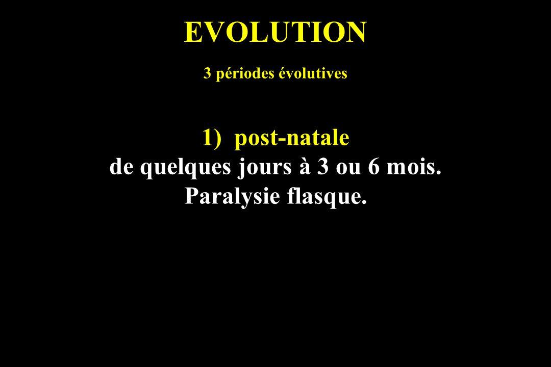 EVOLUTION 3 périodes évolutives 1)post-natale de quelques jours à 3 ou 6 mois. Paralysie flasque.