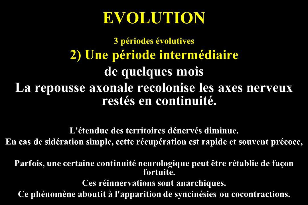 EVOLUTION 3 périodes évolutives 2) Une période intermédiaire de quelques mois La repousse axonale recolonise les axes nerveux restés en continuité. L'