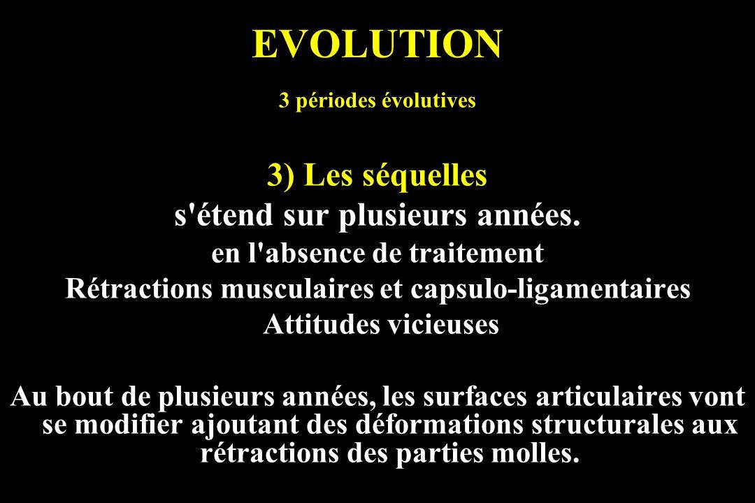 EVOLUTION 3 périodes évolutives 3) Les séquelles s'étend sur plusieurs années. en l'absence de traitement Rétractions musculaires et capsulo-ligamenta