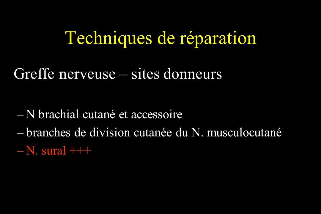 Techniques de réparation Greffe nerveuse – sites donneurs –N brachial cutané et accessoire –branches de division cutanée du N. musculocutané –N. sural