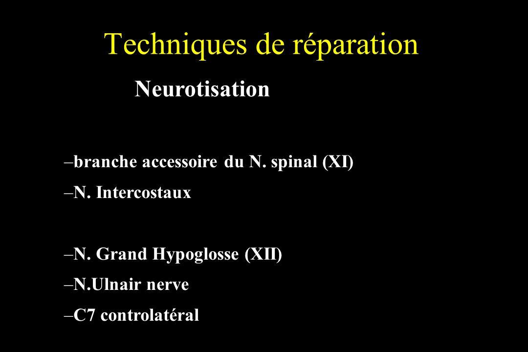 Techniques de réparation Neurotisation –branche accessoire du N. spinal (XI) –N. Intercostaux –N. Grand Hypoglosse (XII) –N.Ulnair nerve –C7 controlat
