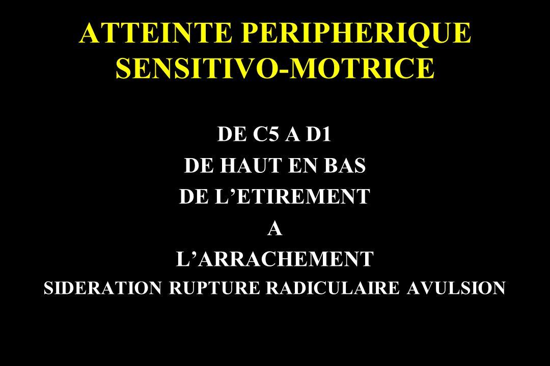 ATTEINTE PERIPHERIQUE SENSITIVO-MOTRICE DE C5 A D1 DE HAUT EN BAS DE LETIREMENT A LARRACHEMENT SIDERATION RUPTURE RADICULAIRE AVULSION