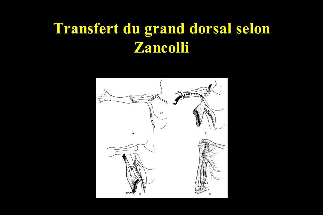 Transfert du grand dorsal selon Zancolli