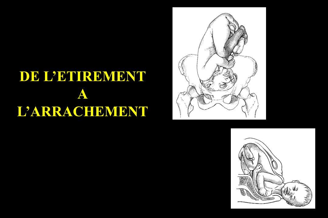 DE LETIREMENT A LARRACHEMENT