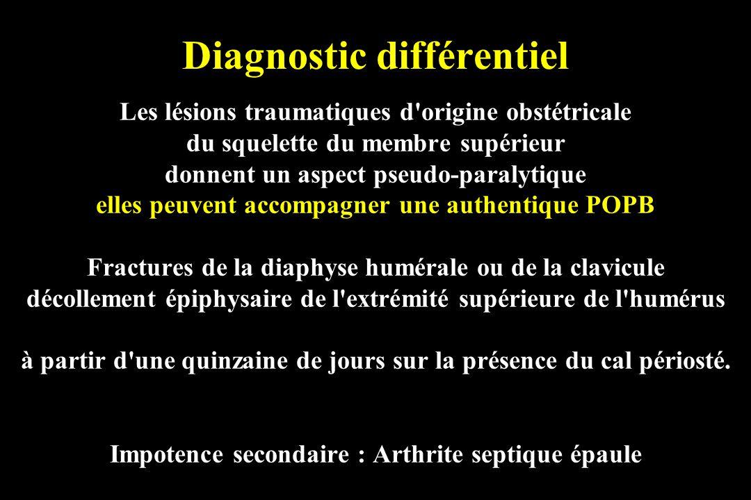 Diagnostic différentiel Les lésions traumatiques d'origine obstétricale du squelette du membre supérieur donnent un aspect pseudo-paralytique elles pe