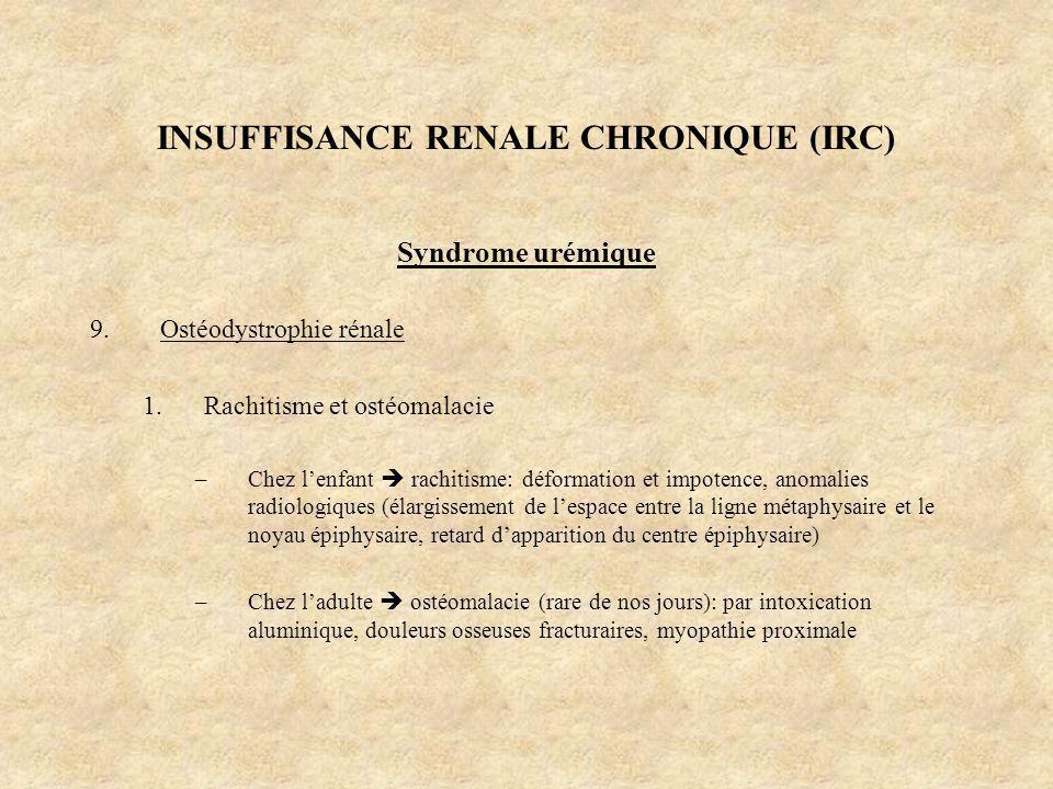 INSUFFISANCE RENALE CHRONIQUE (IRC) Syndrome urémique 9.Ostéodystrophie rénale 1.Rachitisme et ostéomalacie –Chez lenfant rachitisme: déformation et i