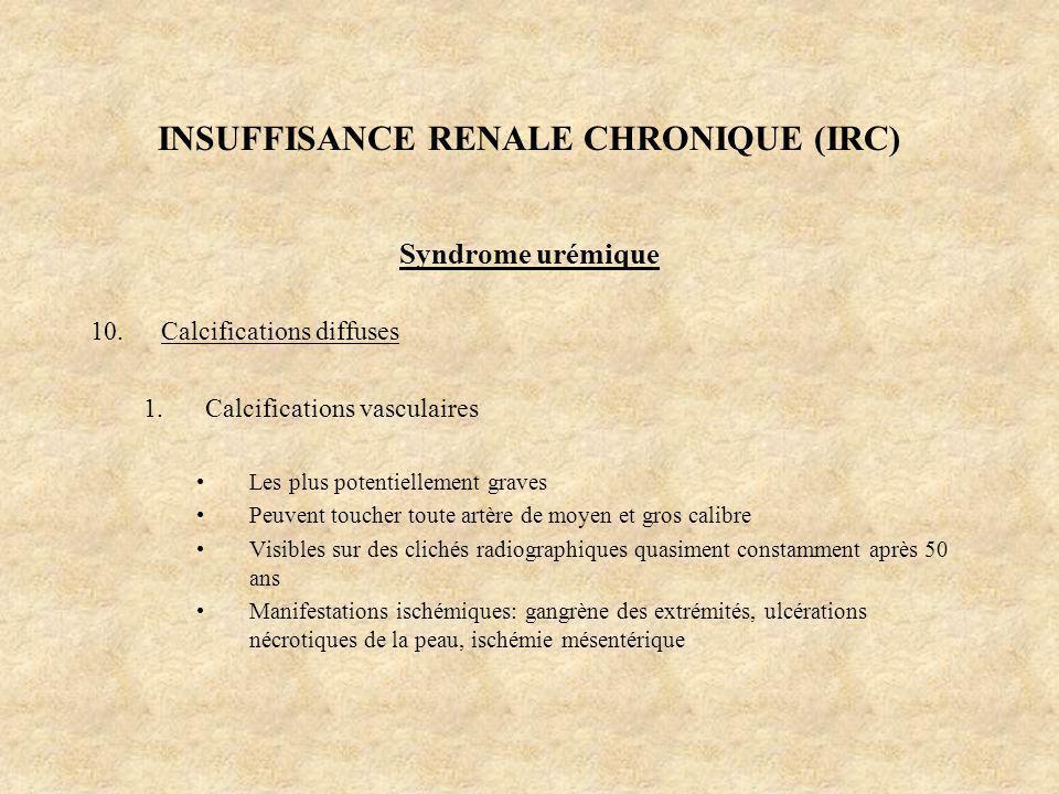 INSUFFISANCE RENALE CHRONIQUE (IRC) Syndrome urémique 10.Calcifications diffuses 1.Calcifications vasculaires Les plus potentiellement graves Peuvent