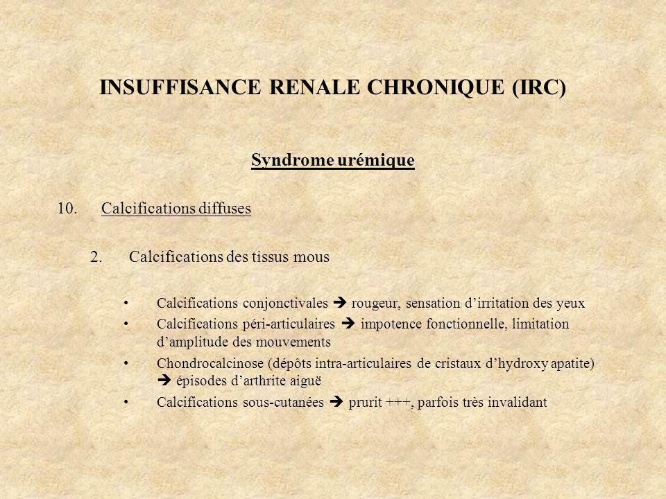 INSUFFISANCE RENALE CHRONIQUE (IRC) Syndrome urémique 10.Calcifications diffuses 2.Calcifications des tissus mous Calcifications conjonctivales rougeu