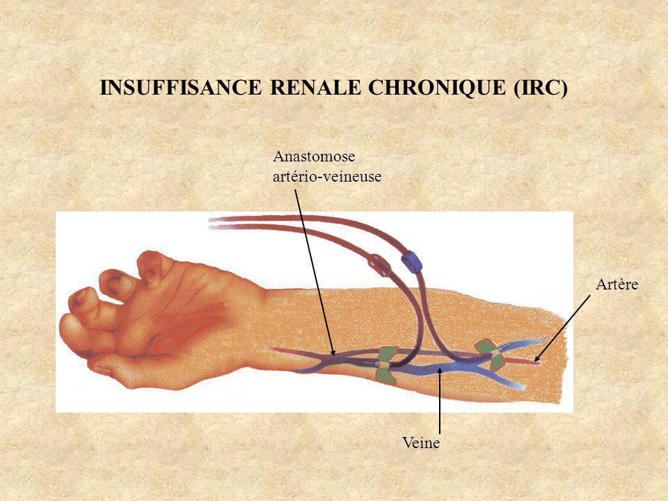 INSUFFISANCE RENALE CHRONIQUE (IRC) Artère Veine Anastomose artério-veineuse