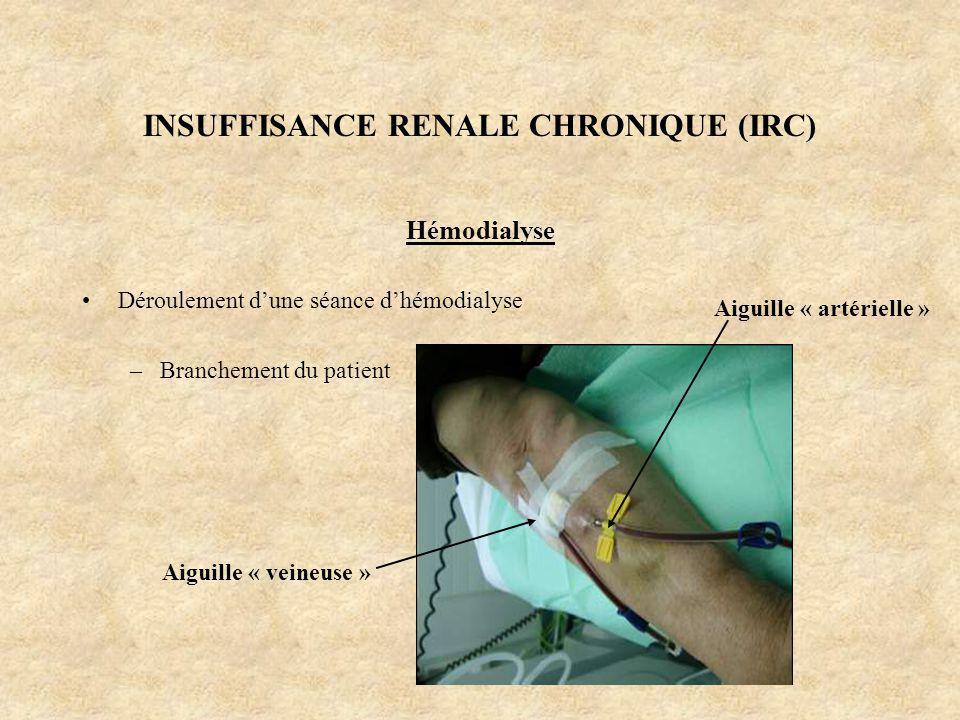 INSUFFISANCE RENALE CHRONIQUE (IRC) Hémodialyse Déroulement dune séance dhémodialyse –Branchement du patient Aiguille « veineuse » Aiguille « artériel