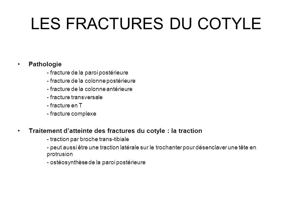 LES FRACTURES DU COTYLE Pathologie - fracture de la paroi postérieure - fracture de la colonne postérieure - fracture de la colonne antérieure - fract