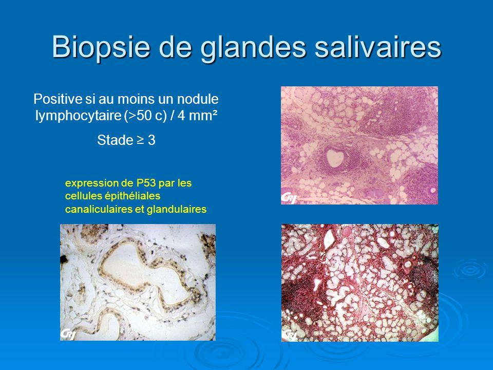 Biopsie de glandes salivaires Positive si au moins un nodule lymphocytaire (>50 c) / 4 mm² Stade 3 expression de P53 par les cellules épithéliales can