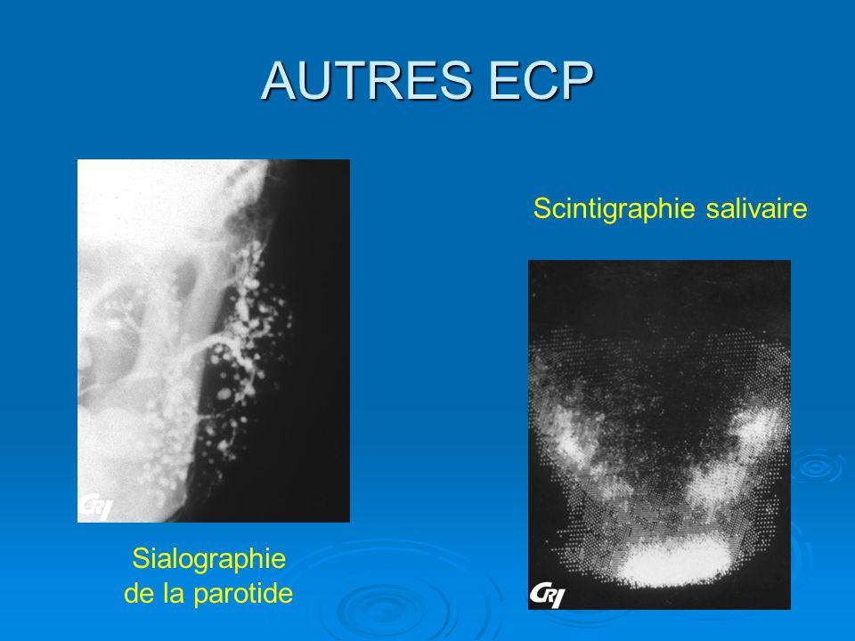 AUTRES ECP Scintigraphie salivaire Sialographie de la parotide