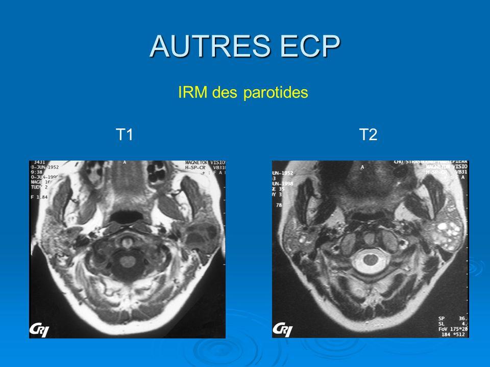 AUTRES ECP IRM des parotides T1 T2