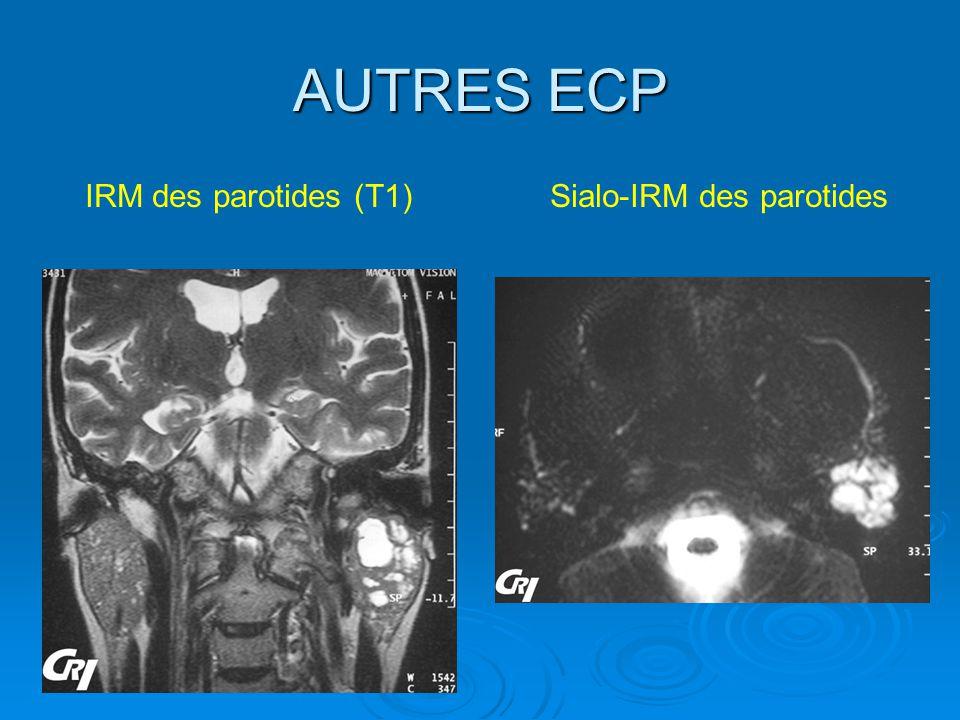 AUTRES ECP IRM des parotides (T1) Sialo-IRM des parotides