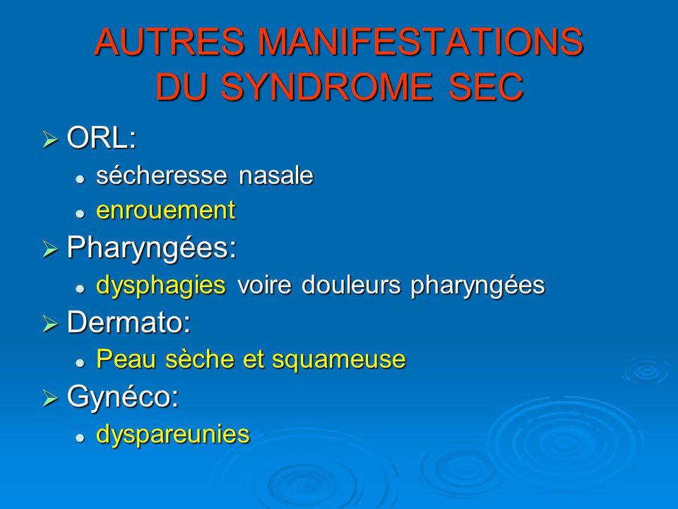 AUTRES MANIFESTATIONS DU SYNDROME SEC ORL: ORL: sécheresse nasale sécheresse nasale enrouement enrouement Pharyngées: Pharyngées: dysphagies voire dou