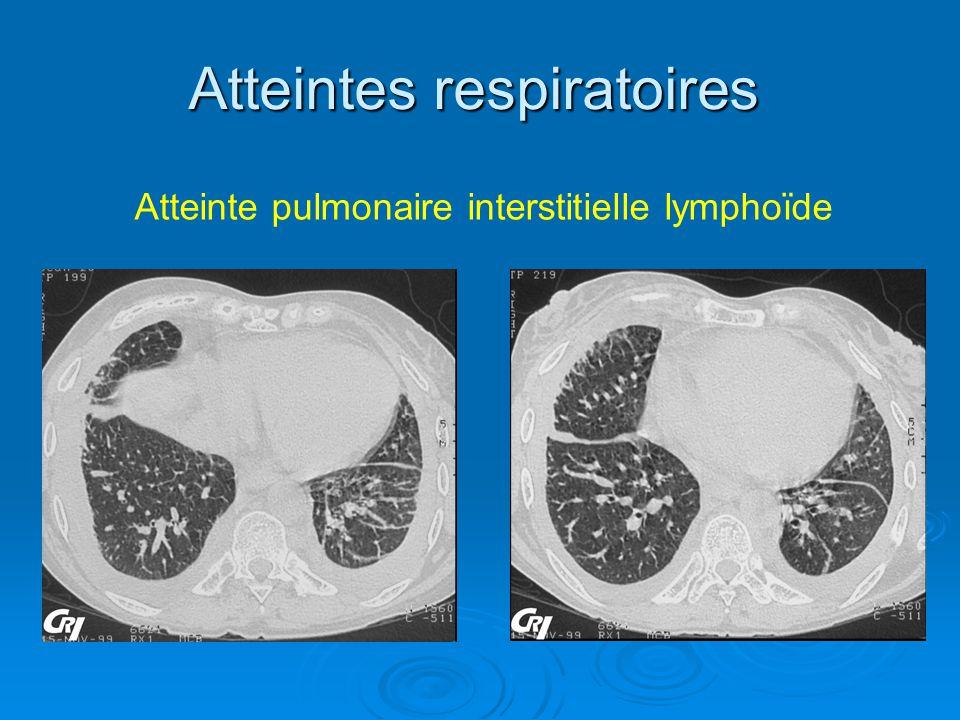 Atteintes respiratoires Atteinte pulmonaire interstitielle lymphoïde