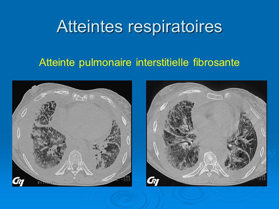 Atteintes respiratoires Atteinte pulmonaire interstitielle fibrosante