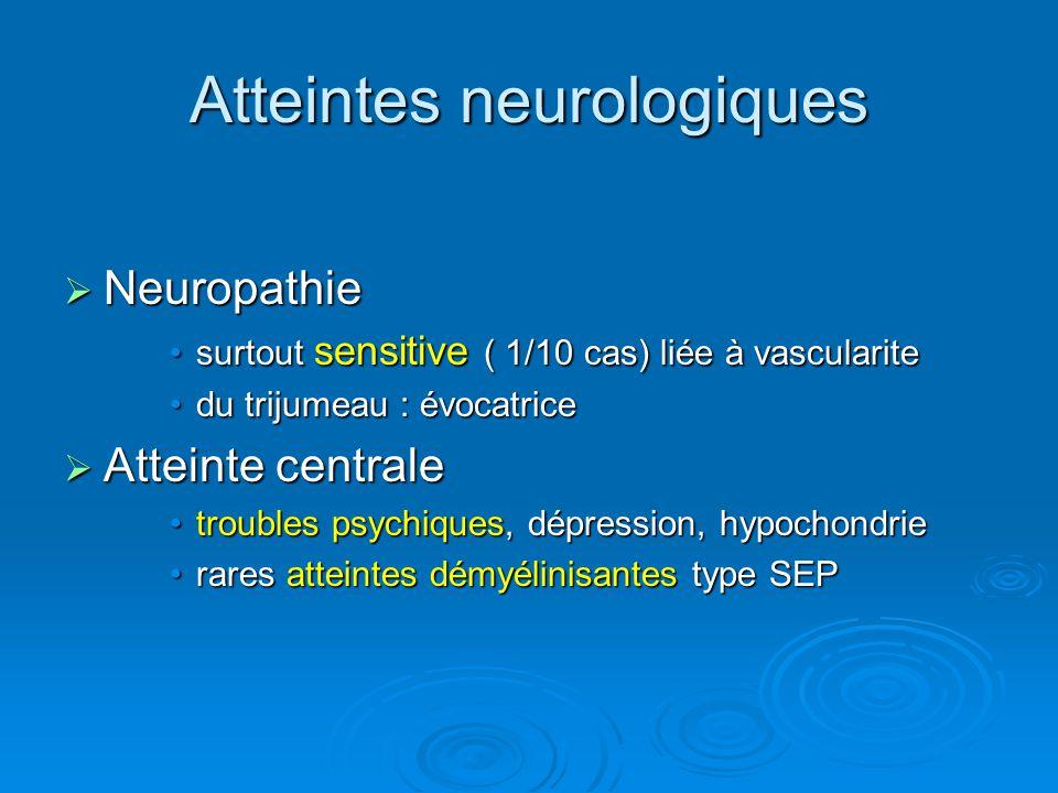 Atteintes neurologiques Neuropathie Neuropathie surtout sensitive ( 1/10 cas) liée à vascularitesurtout sensitive ( 1/10 cas) liée à vascularite du tr