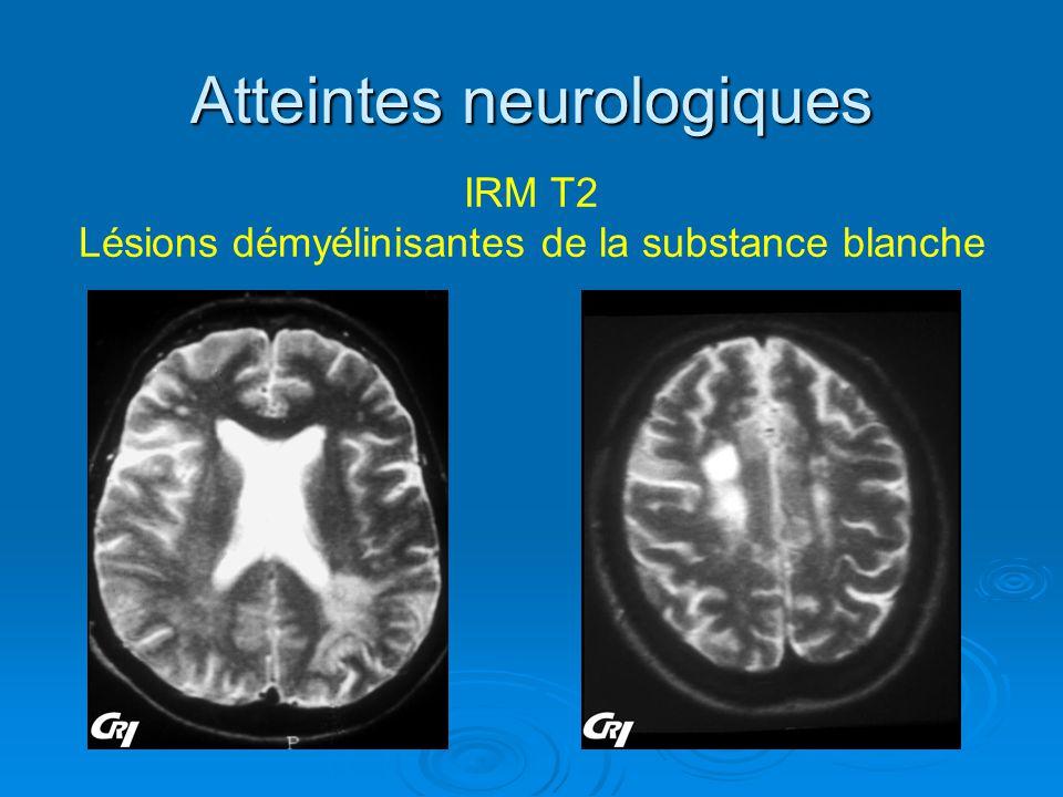 Atteintes neurologiques IRM T2 Lésions démyélinisantes de la substance blanche
