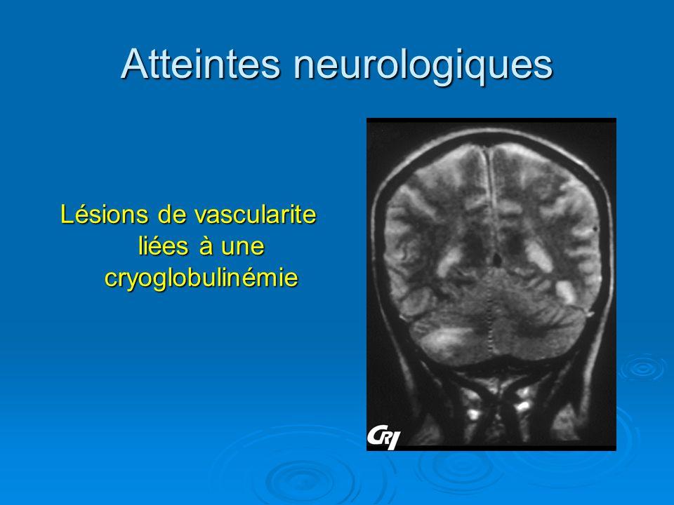 Atteintes neurologiques Lésions de vascularite liées à une cryoglobulinémie