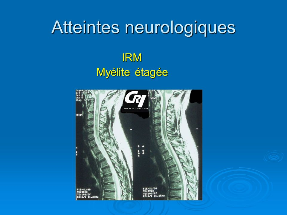 Atteintes neurologiques IRM Myélite étagée