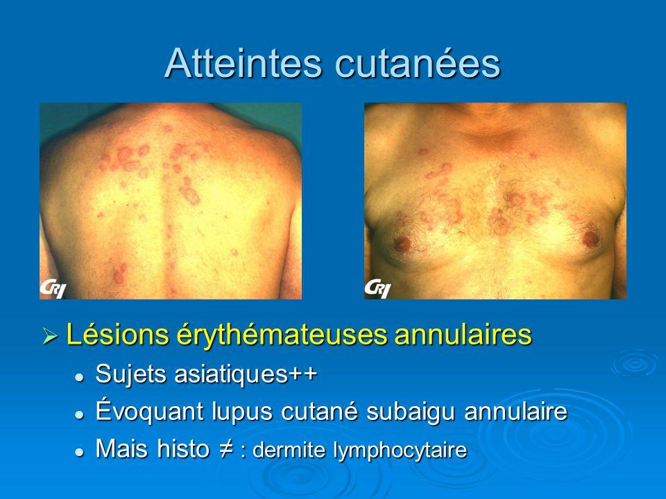 Atteintes cutanées Lésions érythémateuses annulaires Lésions érythémateuses annulaires Sujets asiatiques++ Évoquant lupus cutané subaigu annulaire Mai