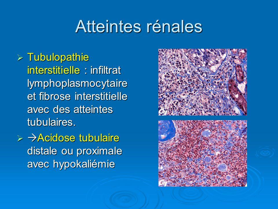 Atteintes rénales Tubulopathie interstitielle : infiltrat lymphoplasmocytaire et fibrose interstitielle avec des atteintes tubulaires. Tubulopathie in