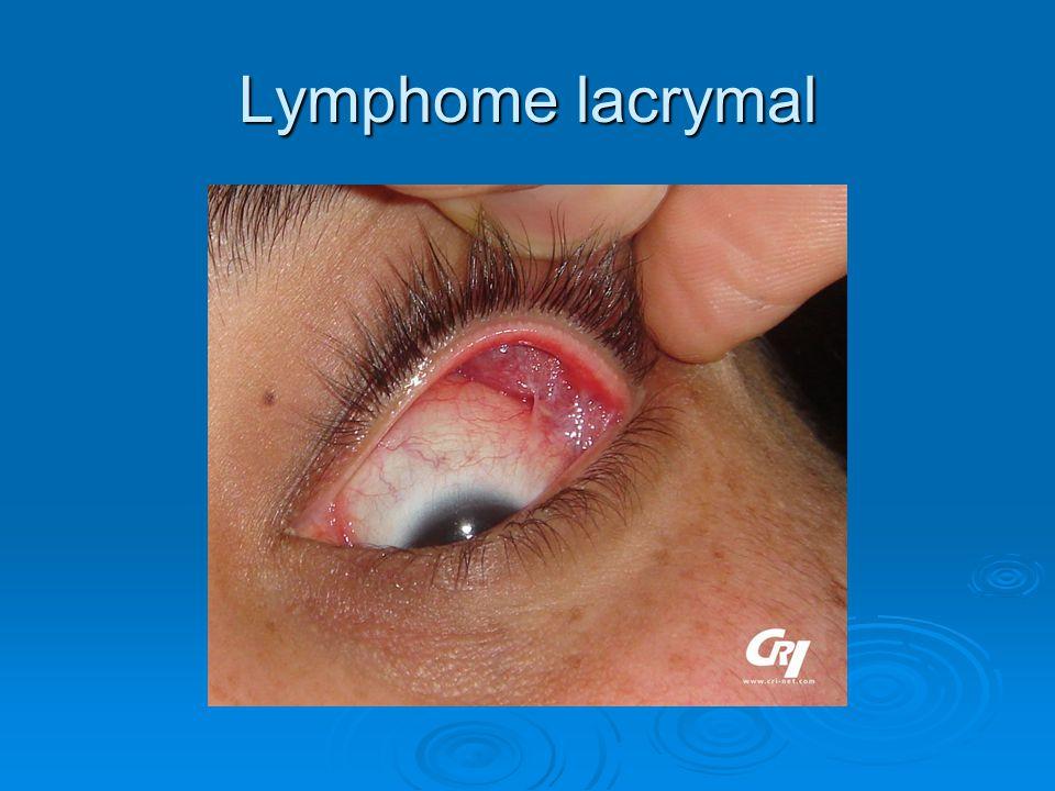 Lymphome lacrymal