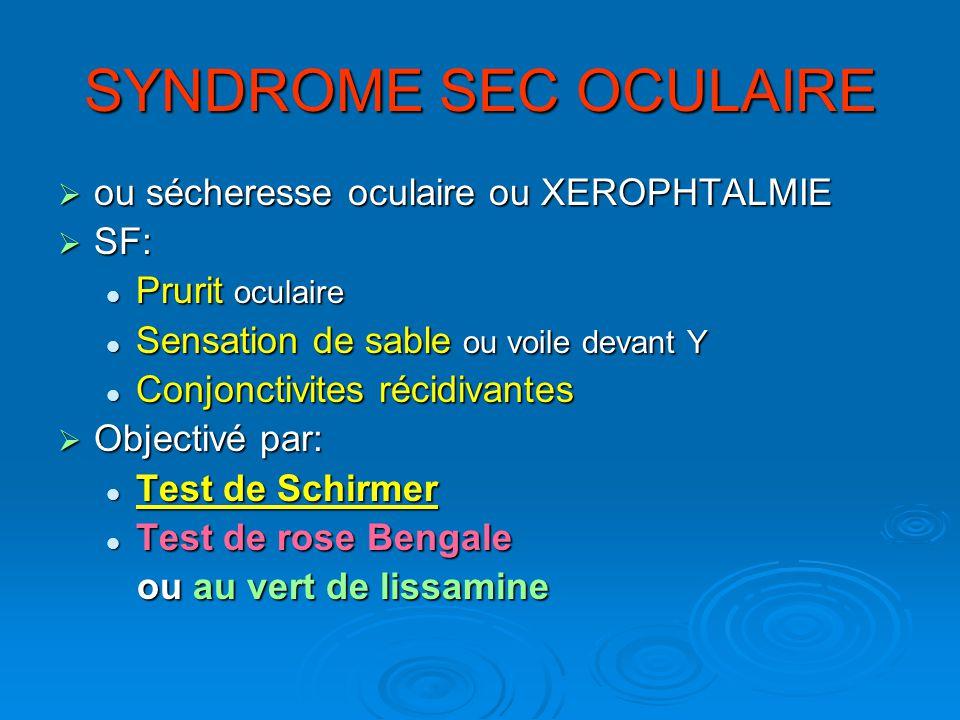 SYNDROME SEC OCULAIRE ou sécheresse oculaire ou XEROPHTALMIE ou sécheresse oculaire ou XEROPHTALMIE SF: SF: Prurit oculaire Prurit oculaire Sensation