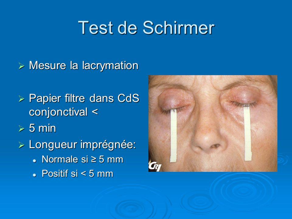Test de Schirmer Mesure la lacrymation Mesure la lacrymation Papier filtre dans CdS conjonctival < Papier filtre dans CdS conjonctival < 5 min 5 min L