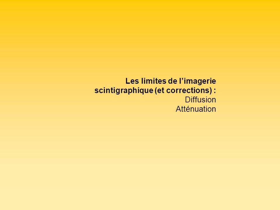 Les limites de limagerie scintigraphique (et corrections) : Diffusion Atténuation