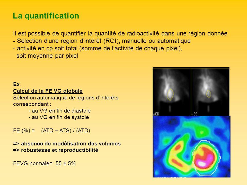 La quantification Il est possible de quantifier la quantité de radioactivité dans une région donnée - Sélection dune région dintérêt (ROI), manuelle o