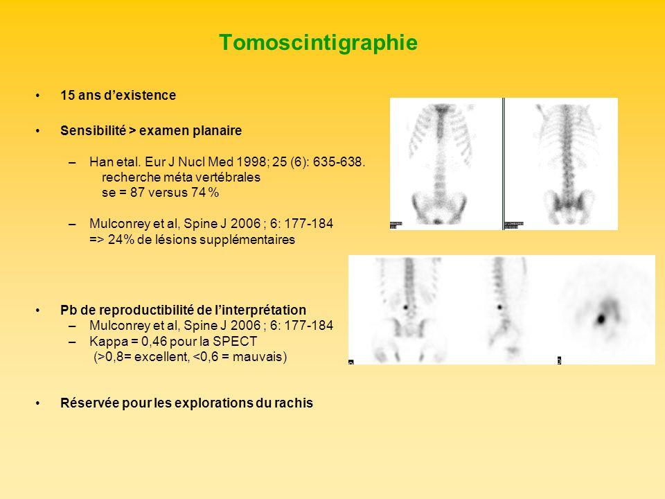 15 ans dexistence Sensibilité > examen planaire –Han etal. Eur J Nucl Med 1998; 25 (6): 635-638. recherche méta vertébrales se = 87 versus 74 % –Mulco