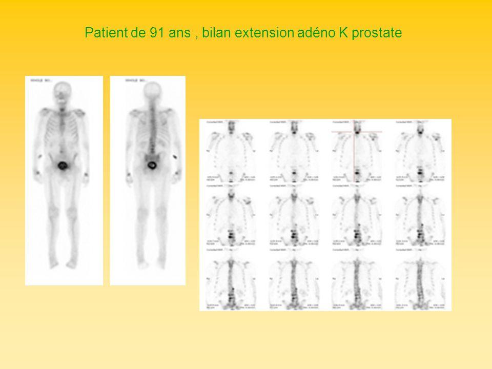 Patient de 91 ans, bilan extension adéno K prostate