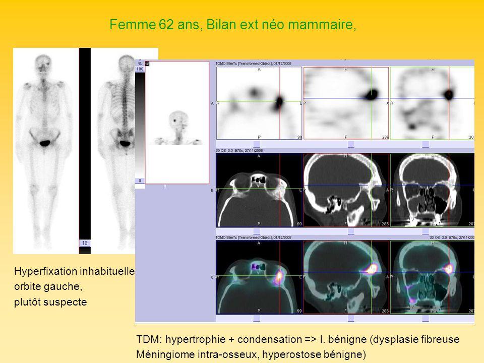Femme 62 ans, Bilan ext néo mammaire, Hyperfixation inhabituelle orbite gauche, plutôt suspecte TDM: hypertrophie + condensation => l. bénigne (dyspla