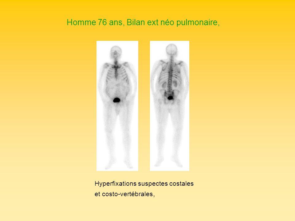 Homme 76 ans, Bilan ext néo pulmonaire, Hyperfixations suspectes costales et costo-vertébrales,