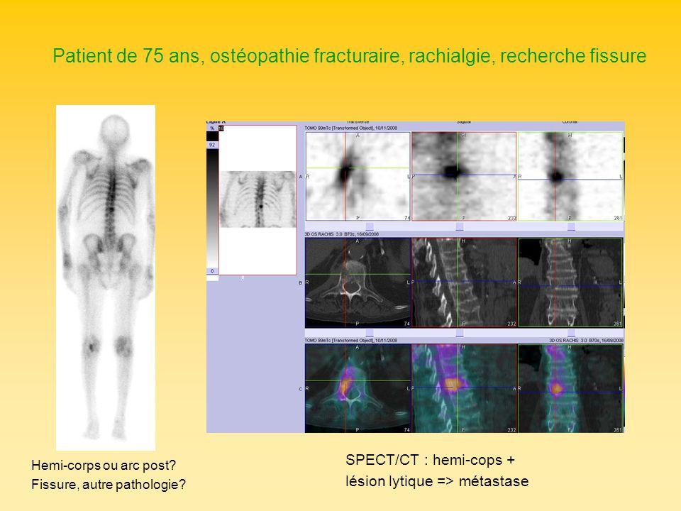 Patient de 75 ans, ostéopathie fracturaire, rachialgie, recherche fissure Hemi-corps ou arc post? Fissure, autre pathologie? SPECT/CT : hemi-cops + lé